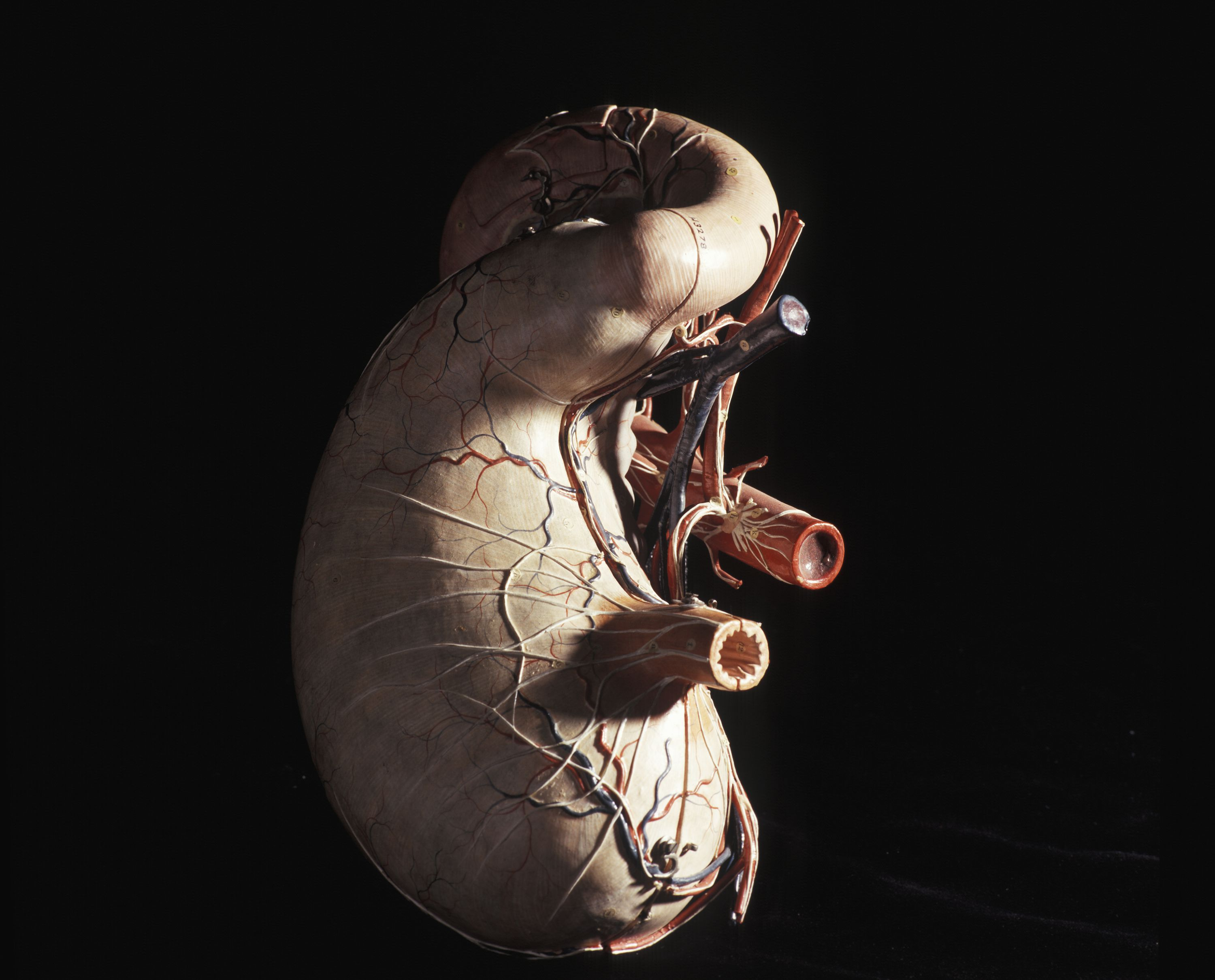 model of a human stomach